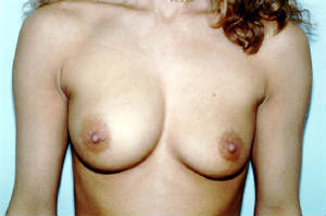 breast-implant-deflated.jpg