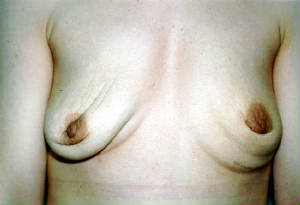 breast-implant-repture-removed.jpg